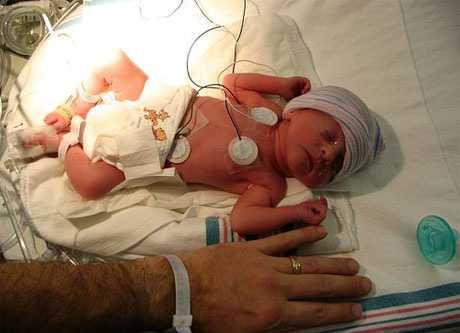 Desarrollo en bebés preematuros