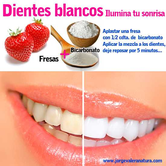 remedios caseros blanquear los dientes
