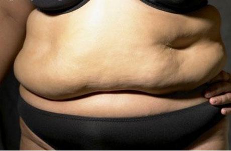 flagelo de la obesidad