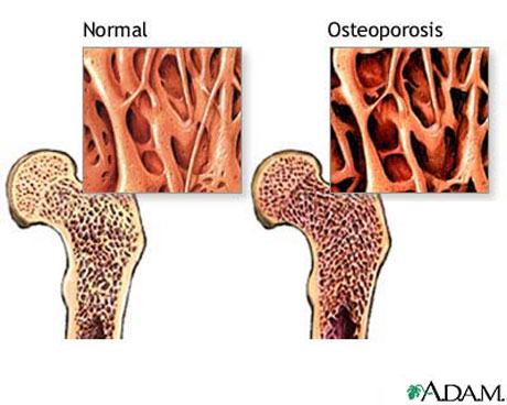 examen de la osteoporosis