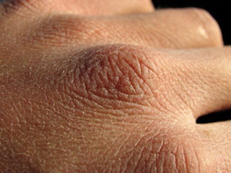 combatir la piel seca
