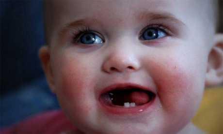 Salida de los dientes