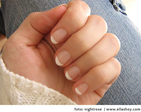 manchas blancas